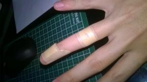 2 Injuries